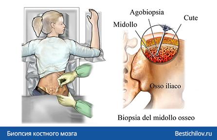 аспирация костного мозга