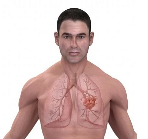 опухоль легких