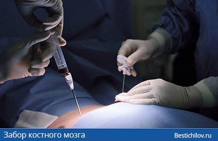 забор костного мозга через шприц