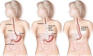 операция при раке кишечника