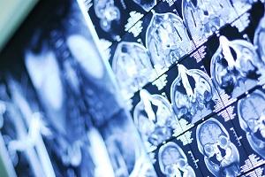 рентген костей