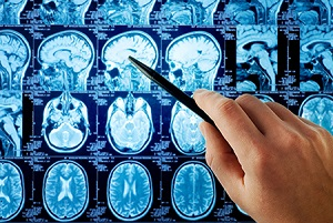 рентген опухоли мозга