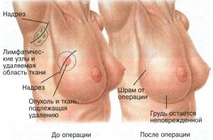 лампэктомия