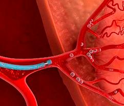 эмболизация почечных артерий